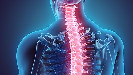 Klinik für Orthopädie - Wirbelsäule