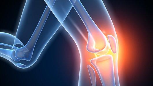 Kniegelenkersatz Endoprothetikzentrum Klinikum Westfalen