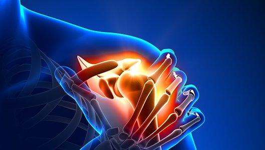 Klinik  für Orthopädie - Schulter