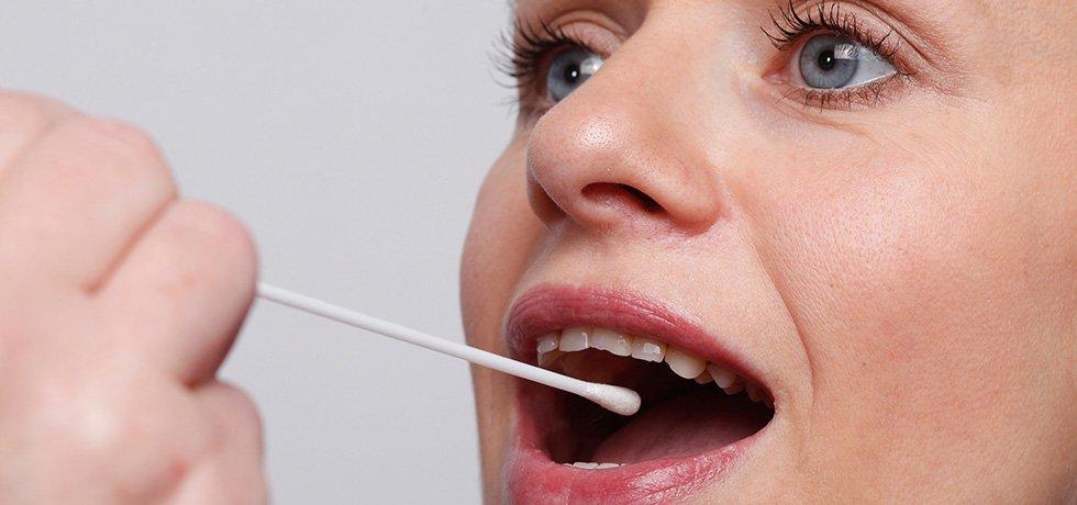 Die Bekämpfung multiresistenter Keime nehmen die Krankenhäuser des Klinikums Westfalen sehr ernst. Mithilfe eines Abstriches wenige Tage vor der stationären Aufnahme wird sichergestellt, dass keine dieser Keime in das Krankenhaus gelangen. Symbolbild: einer Frau mit geöffnetem Mund wird mit einem Tupfer ein Test abgenommen.