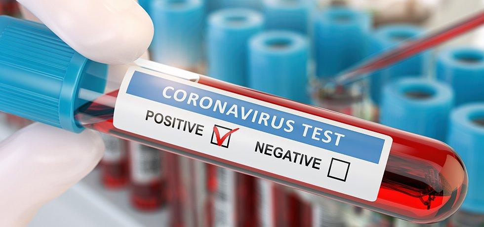 Teströhrchen mit der Aufschrift Coronatest positiv oder negativ