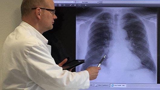 Dr. Thiel bei der Begutachtung einer Röntgenaufnahme