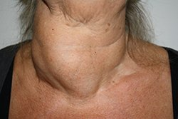 fotos-patientenfotos-struma-Anaplastisches SD-CA