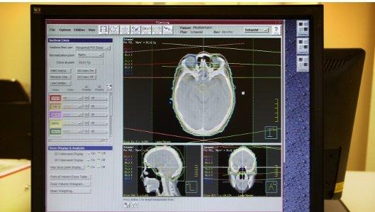 Klinik für Radioonkologie und Strahlentherapie