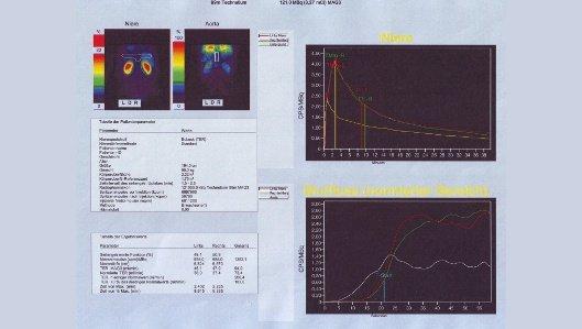 Nierenszintigrafie