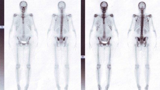 Knochen (Skelett)- und Gelenkszintigrafie