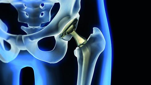 Klinik für Orthopädie - Hueftgelenk