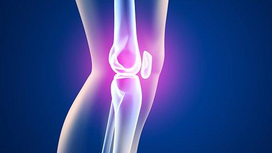 Klinik für Orthopädie - Kniegelenk