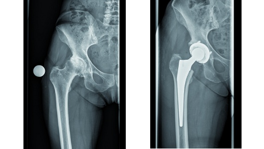 Klinik für Orthopädie