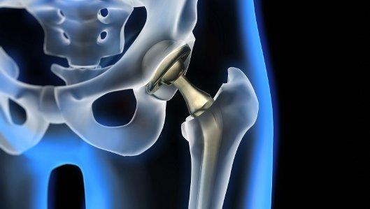 Gelenkersatz durch Prothesen
